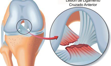 Prevención de la lesión del ligamento cruzado anterior.